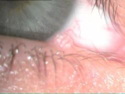 גידול קונדילומה בעפעף תחתון מימין בהגדלה