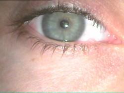 eyelidCONDYLOMA_250x188